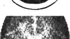Комп`ютерна томографія - дитяча неврологія