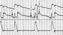 Коронарний кровотік - динаміка серцево-судинної системи