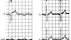 Критерії діагностики інфаркту - електрокардіограма при штучному водія ритму серця