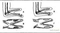 Крукенберга операція