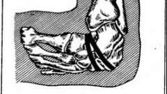 Кусліка серповидная резекція стопи