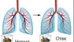 Лікування набряку легенів