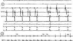 Лікування пароксизмальної синусової тахікардії - аритмії серця (3)