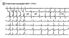 Лікування пароксизмальної тахікардії - аритмії серця (3)
