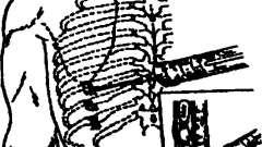 Маніпуляції на трахеї, органах грудної клітини і плевральної порожнини - методи дослідження та маніпуляції в клінічній медицині