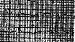 Методи діагностики - порушення ритму і провідності серця