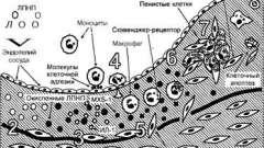 Початкові стадії розвитку атеросклерозу - патоморфологія і патогенез атеросклерозу