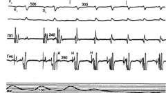Надшлуночкова тахікардія - аритмії серця (6)