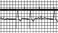 Порушення ритму, обумовлені кардіостимуляція - електрокардіограма при штучному водія ритму серця