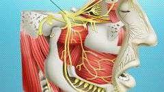 Неврит трійчастого нерва