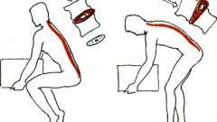Про ризик і попередженні загострень - поперековий остеохондроз