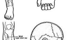 Знеболювання при операціях на органах черевної порожнини - голкотерапія в анестезіології та реаніматології
