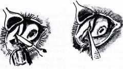 Операції на слізної залозі - хвороби слізних органів