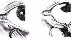 Операції на слізних точках - хвороби слізних органів