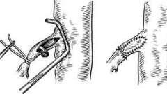 Операції при артеріальному тромбозі - гострі порушення мезентериального кровообігу