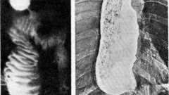 Органічні стенози - хвороби оперованого стравоходу