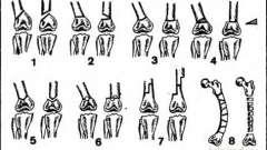 Остеотомія