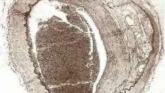 Патологія інтракраніальних відділів магістральних артерій голови і поверхні мозку - патологія головного мозку при атеросклерозі і артеріальної гіпертонії
