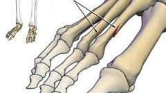 Перелом пальця ноги