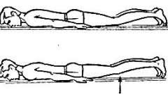 Переломи в грудному і поперековому відділах хребта