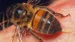 Перша допомога при укусі бджоли