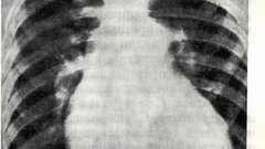 Первинна легенева гіпертензія - захворювання серцево-судинної системи дітей