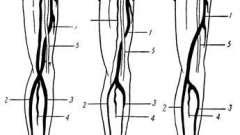 Плечова артерія - анатомічні варіанти і помилки в практиці лікаря