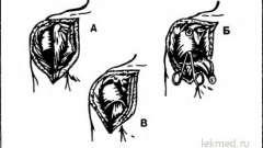 Плечова кістка, звичний вивих