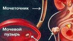 Ниркова колька