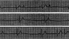 Показання до холтерівське моніторування - аритмії серця (6)