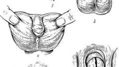 Пороки розвитку сечівника у чоловіків - анатомічні варіанти і помилки в практиці лікаря