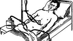 Післяопераційний період у хворих на перитоніт, діаліз - помилки в діагностиці та лікуванні гострих захворювань і травм живота