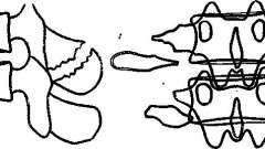 Пошкодження грудних і поперекових хребців - рентгенодіагностика захворювань хребта