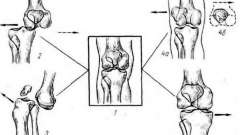 Пошкодження колінного суглоба - невідкладна рентгенодіагностика