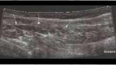 Пошкодження м`язів - суглоби і м`язи ультразвукове дослідження