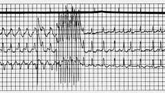 Застосування електричної стимуляції при надшлуночкових тахікардіях - електрокардіограма при штучному водія ритму серця