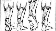Приоло - вульпіус ахіллотомія