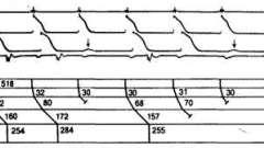 Просунута атріовентрикулярнаблокада другого ступеня - аритмії серця (4)