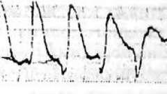 Профілактика і лікування аритмій у хворих з хронічною застійною серцевою недостатністю - хзсн, идиопатические миокардиопатии