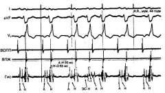 Псевдотахікардія - аритмії серця (3)
