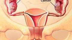 Рак яєчників
