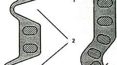 Розвиток, будова, течія - дивертикули кишківника