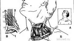 Ребра шийні