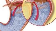 Рефлюкс-езофагіт
