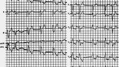 Ретроградна активація передсердь - електрокардіограма при штучному водія ритму серця