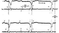 Ритм шлуночків при використанні штучних пейсмекеров - аритмії серця (4)