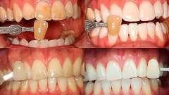 Секрети білосніжних зубів