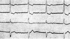 Серцеві альтернаціі - клінічна кардіологія ч.2