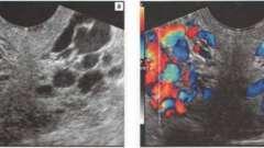 Серозоцеле, варикозне розширення вен малого тазу, цистаденома - матка і придатки - узі