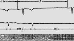 Синоатріальна блокада - порушення ритму і провідності серця